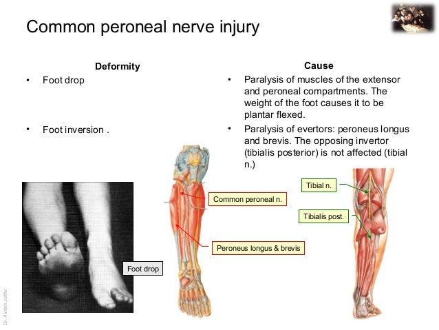 Anatomy of peroneal nerve