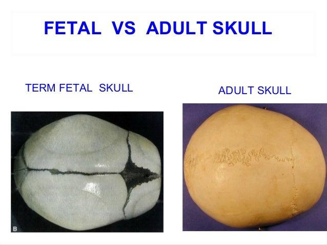 Fetal Skull Development Fetal Skull 45