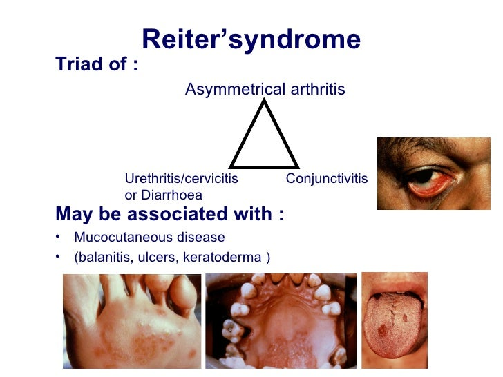 What is systemic disease? | Reference.com