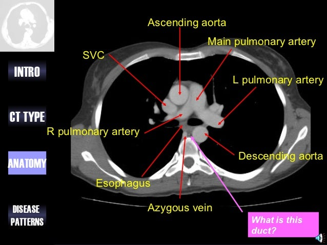 Approach To Ct Chest 578