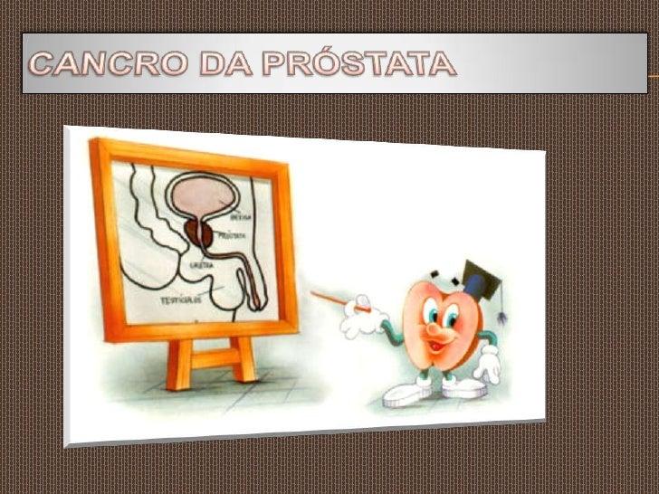 CANCRO DA PRÓSTATA<br />