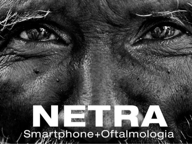 Netra, a câmera oftalmológica
