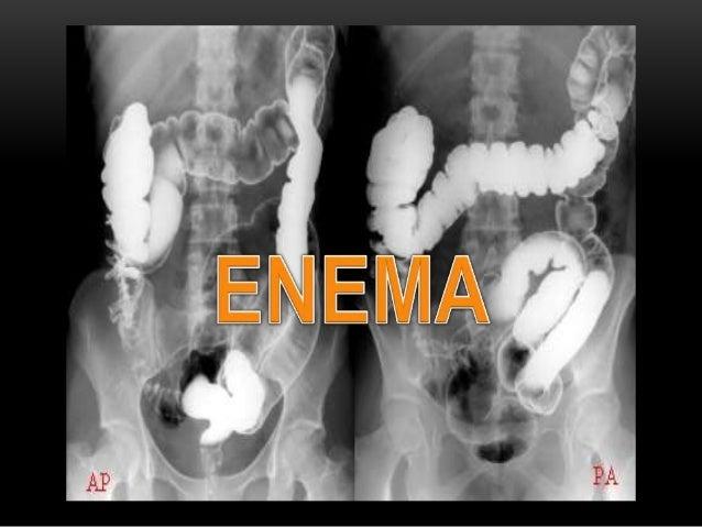 O QUE É ENEMA? 2 • É um procedimento que avalia o intestino grosso (cólon) e o reto.