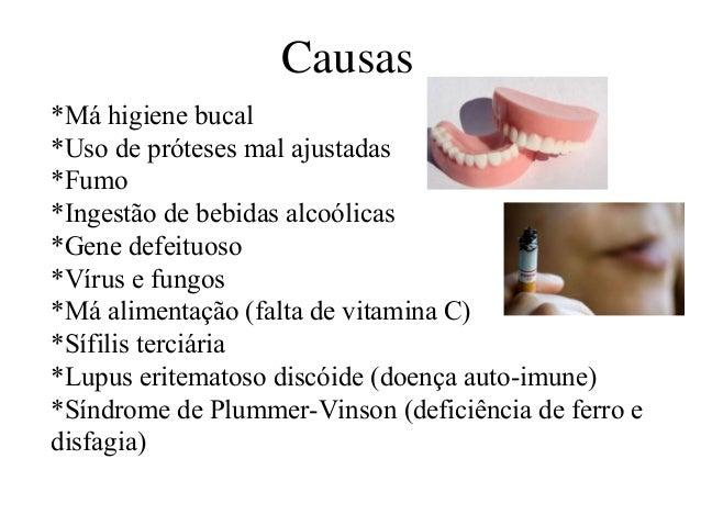 Causas  *Má higiene bucal  *Uso de próteses mal ajustadas  *Fumo  *Ingestão de bebidas alcoólicas  *Gene defeituoso  *Víru...