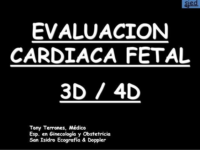 EVALUACION CARDIACA FETAL 3D / 4D Tony Terrones, Médico Esp. en Ginecología y Obstetricia San Isidro Ecografía & Doppler