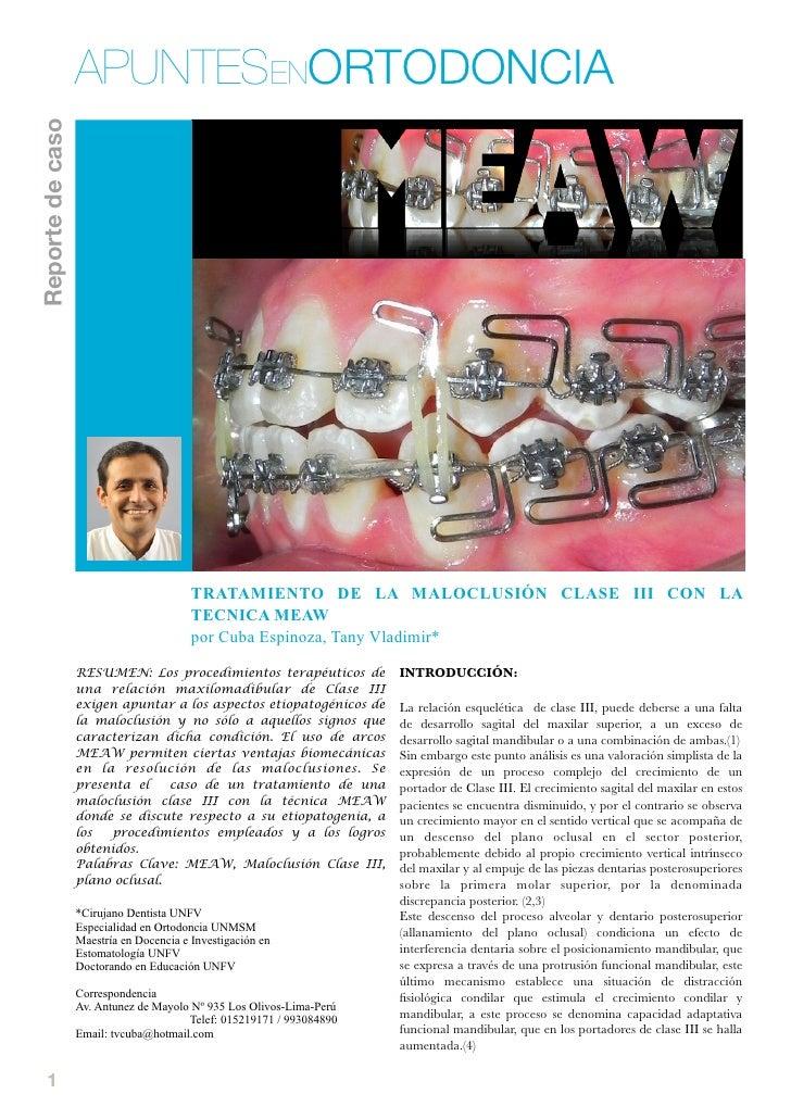 Tratamiento de la maloclusión clase III con la técnica MEAW