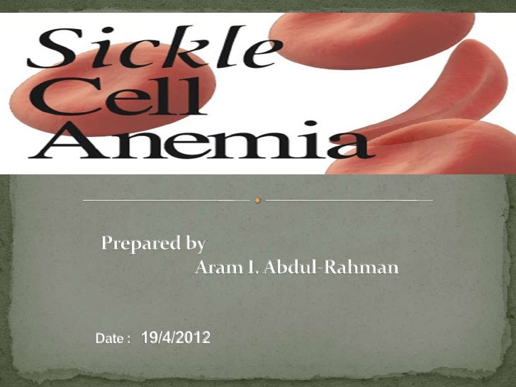  Introduction Types of sickle cell Causes of sickle cell Symptoms Exams and Tests Treatment References