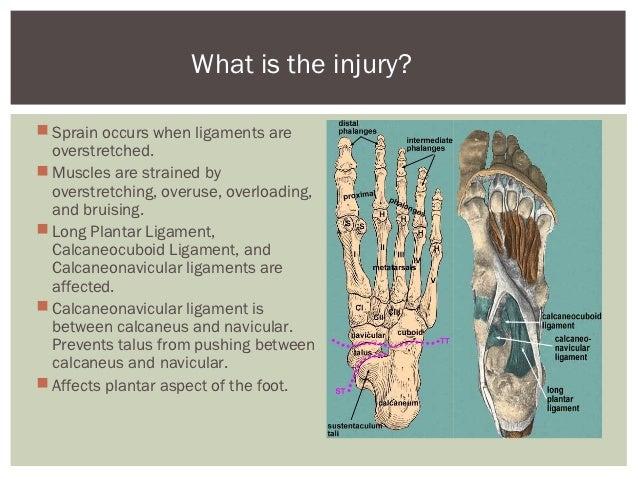 Arch sprains