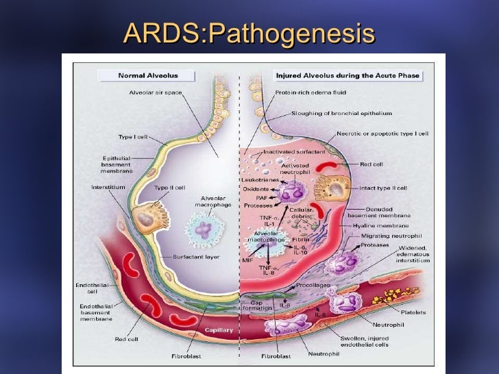 ards case study for nurses