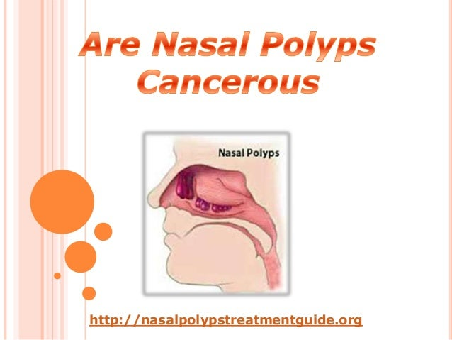 Treatment for cancerous nasal polyps