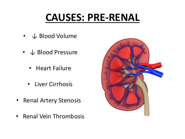 acute renal failure overview
