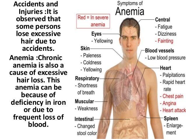 anemia and hair loss
