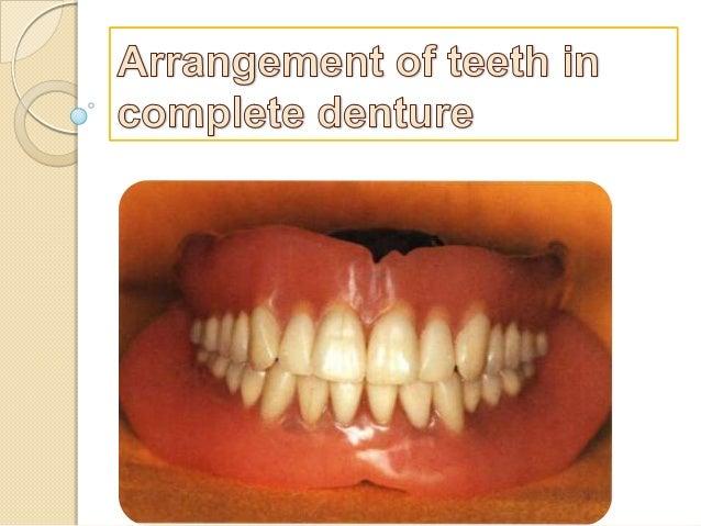 Arrangement of teeth in complete denture
