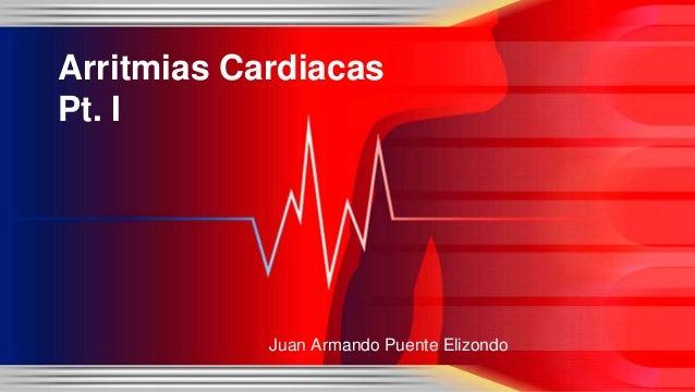 Arritmias Cardiacas Pt. I Juan Armando Puente Elizondo