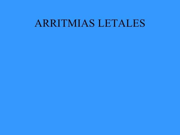 arritmias mortales