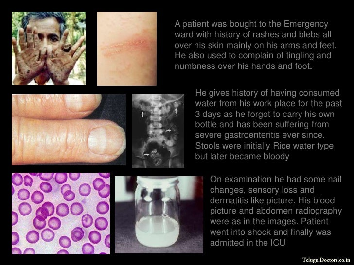 A patient was bought to the Emergency ward with history of rashes and blebs all over his skin mainly on his arms and feet....
