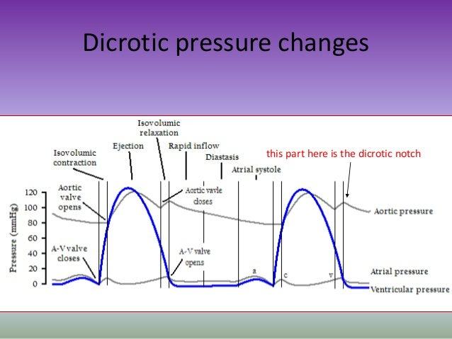 Art Line Underdamped : Dicrotic notch arterial waveform related keywords