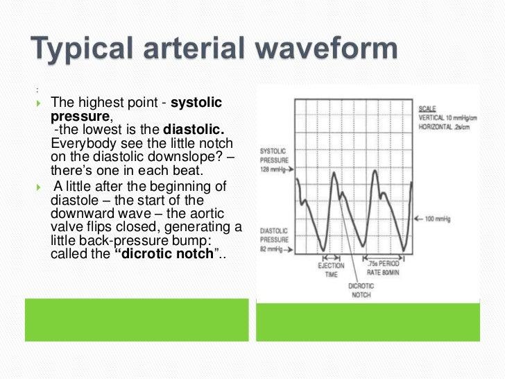 Art Line Underdamped : Arterial line insertion