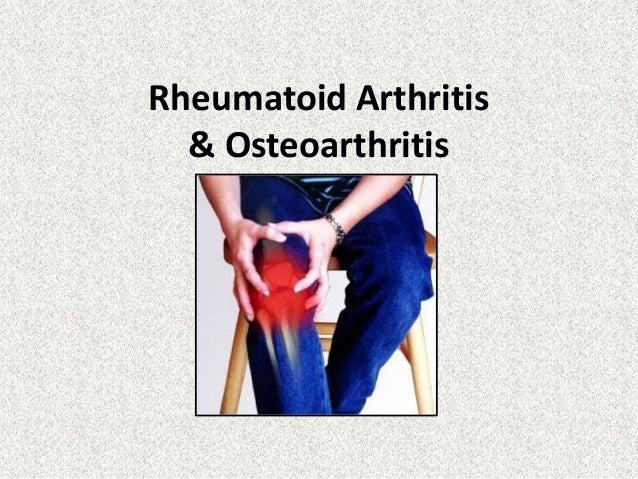 Arthritis slides   kyle hackett