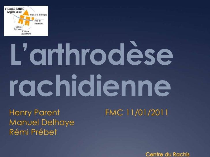 Arthrodèse 11 01 11
