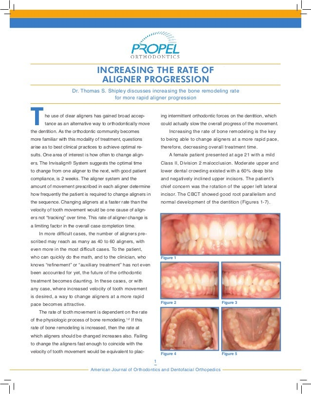 1 American Journal of Orthodontics and Dentofacial Orthopedics THE USE OF PROPEL TO INCREASE THE RATE OF ALIGNER PROGRESSI...