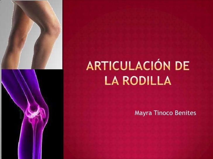 Articulación de la rodilla<br />Mayra Tinoco Benites<br />