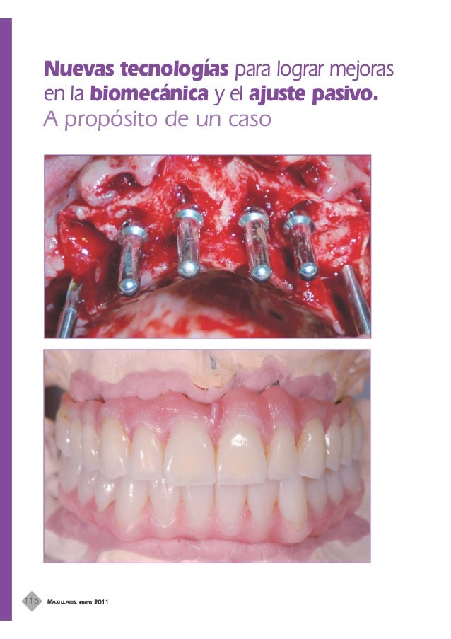 Articulo maxilaris 2010