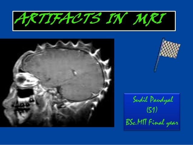 Sudil Paudyal(51)BSc.MIT Final yearARTIFACTS IN MRI