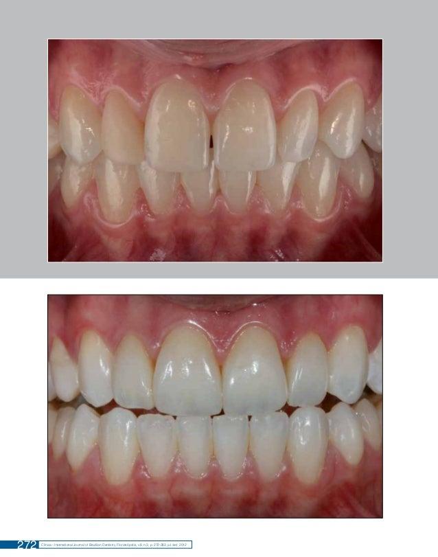 Remodelação do Sorriso com Resina Composta: Acompanhamento de Dois Anos  272  Clínica - International Journal of Brazilian...