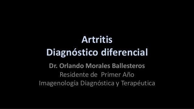 Artritis Diagnóstico diferencial Dr. Orlando Morales Ballesteros Residente de Primer Año Imagenología Diagnóstica y Terapé...