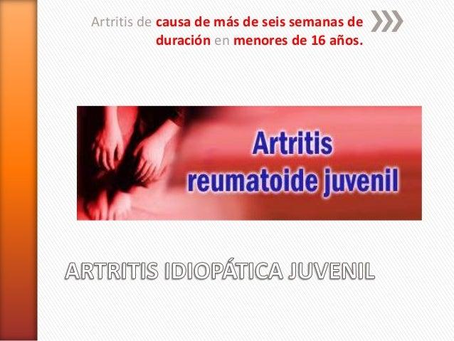 Artritis de causa de más de seis semanas de duración en menores de 16 años.