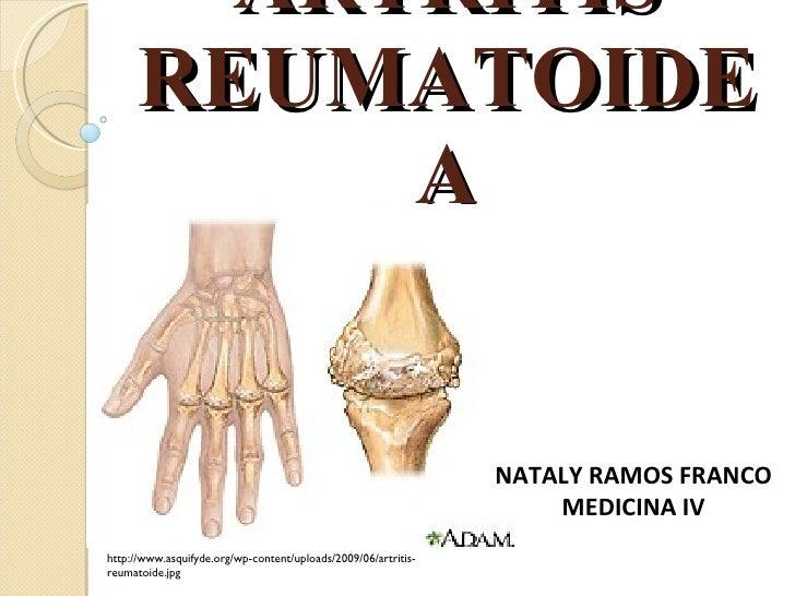 ARTRITIS REUMATOIDEA NATALY RAMOS FRANCO MEDICINA IV http://www.asquifyde.org/wp-content/uploads/2009/06/artritis-reumatoi...
