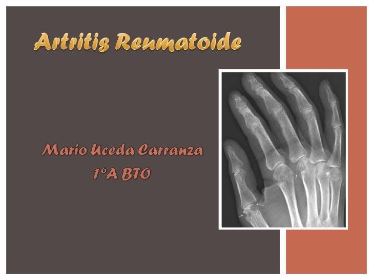 Artritis reumatoide Mario Uceda