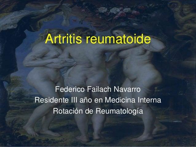 Artritis reumatoide     Federico Failach NavarroResidente III año en Medicina Interna     Rotación de Reumatología