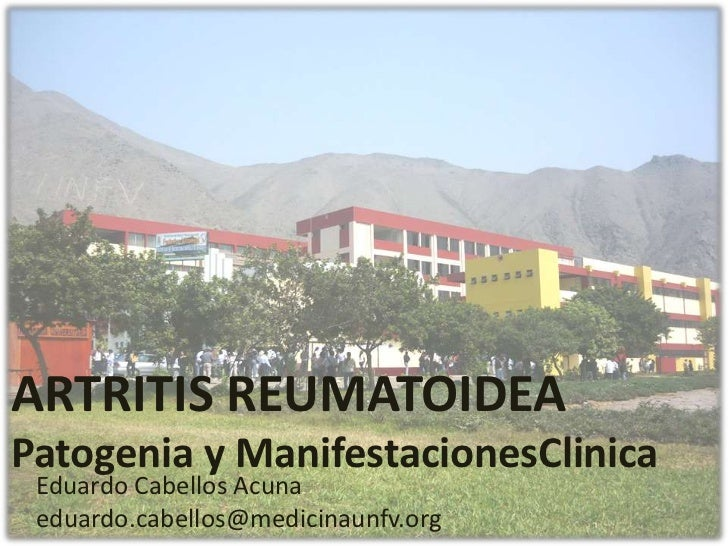 ARTRITIS REUMATOIDEAPatogenia y ManifestacionesClinica Eduardo Cabellos Acuna eduardo.cabellos@medicinaunfv.org