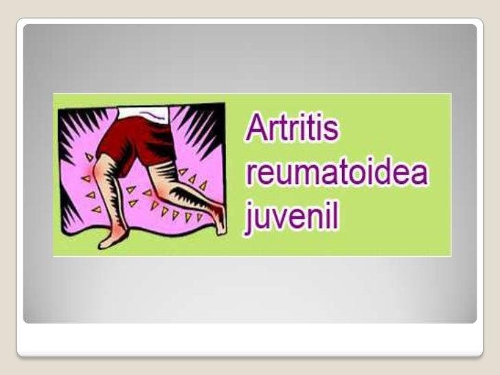   Es un tipo de artritis que ocurre    generalmente antes de los 16 años de edad.   Dolor articular   Rigidez articula...