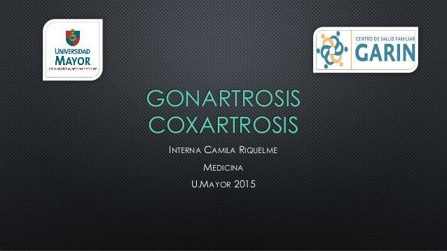 GONARTROSIS COXARTROSIS INTERNA CAMILA RIQUELME MEDICINA U.MAYOR 2015