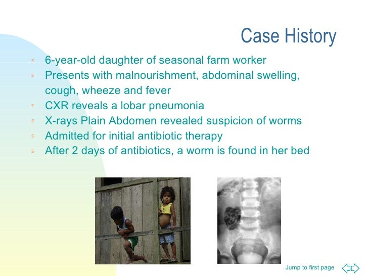 Case History <ul><li>6-year-old daughter of seasonal farm worker </li></ul><ul><li>Presents with malnourishment, abdominal...