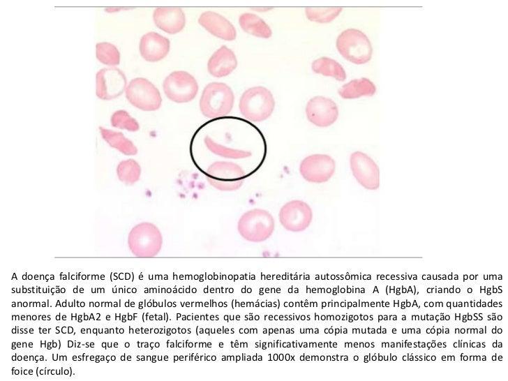 A doença falciforme (SCD) é uma hemoglobinopatia hereditária autossômica recessiva causada por uma substituição de um únic...