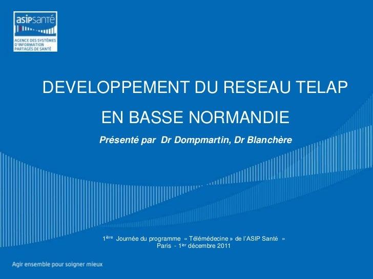 DEVELOPPEMENT DU RESEAU TELAP     EN BASSE NORMANDIE     Présenté par Dr Dompmartin, Dr Blanchère     1ière Journée du pro...