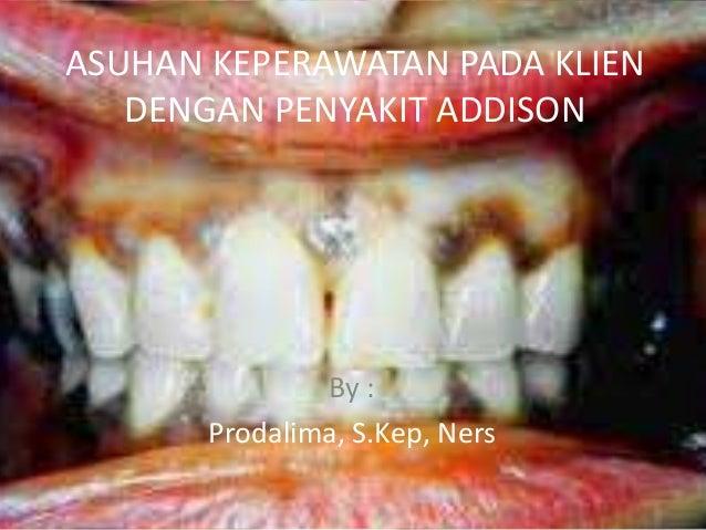 ASUHAN KEPERAWATAN PADA KLIEN   DENGAN PENYAKIT ADDISON               By :       Prodalima, S.Kep, Ners
