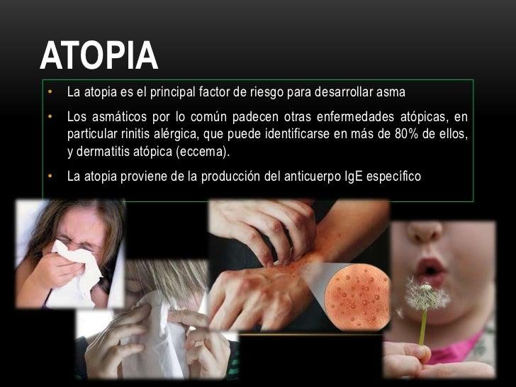 Los ungüentos hormónicos a la psoriasis sobre la cabeza