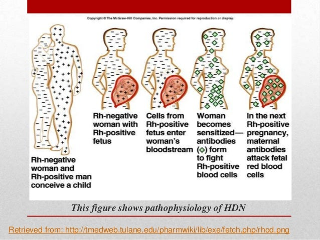 haemolytic disease of the fetus and newborn hdfn Hemolytic disease of the fetus and newborn hdfn fetal rbcs are coated  with maternal alloantibody ○ directed against ag inherited from.