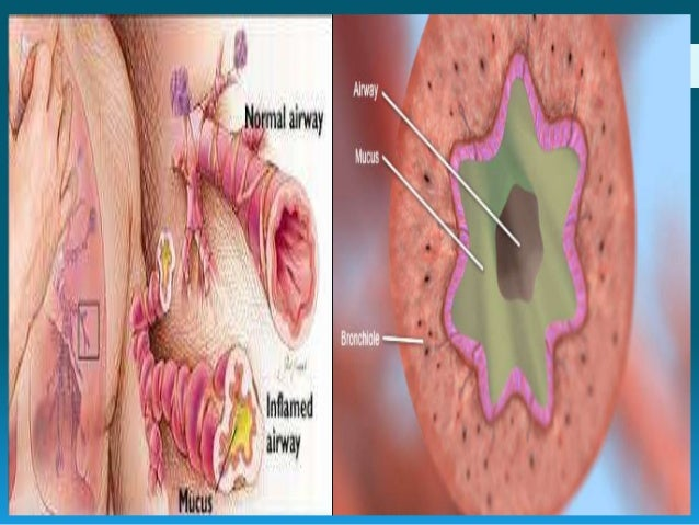 Asthma inflammation and cancer Eman abd el-raouf ahmed Immunology department Medical research institute