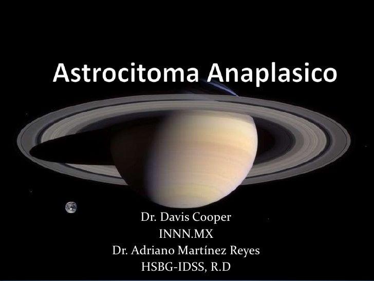 Astrocitoma Anaplasico<br />Dr. Davis Cooper<br />INNN.MX<br />Dr. Adriano Martínez Reyes<br />HSBG-IDSS, R.D<br />