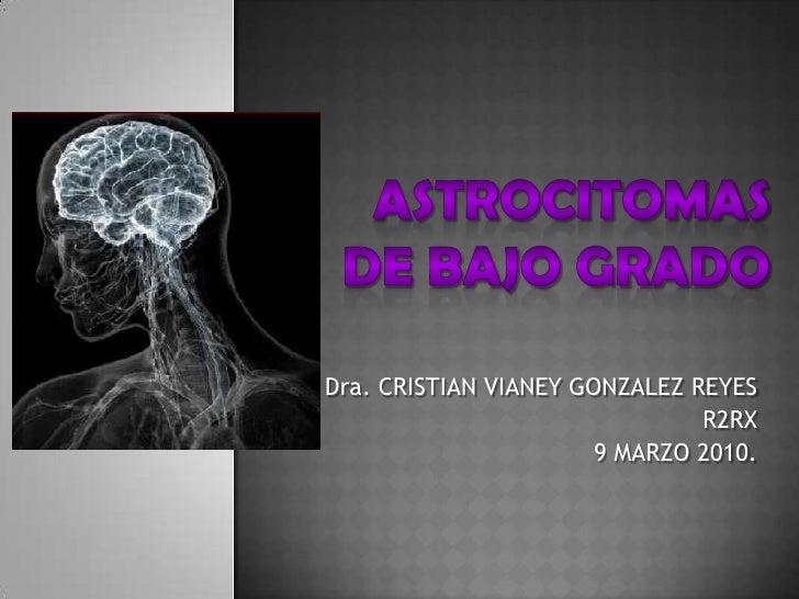 ASTROCITOMAS DE BAJO GRADO<br />Dra. CRISTIAN VIANEY GONZALEZ REYES<br />R2RX<br />9 MARZO 2010.<br />