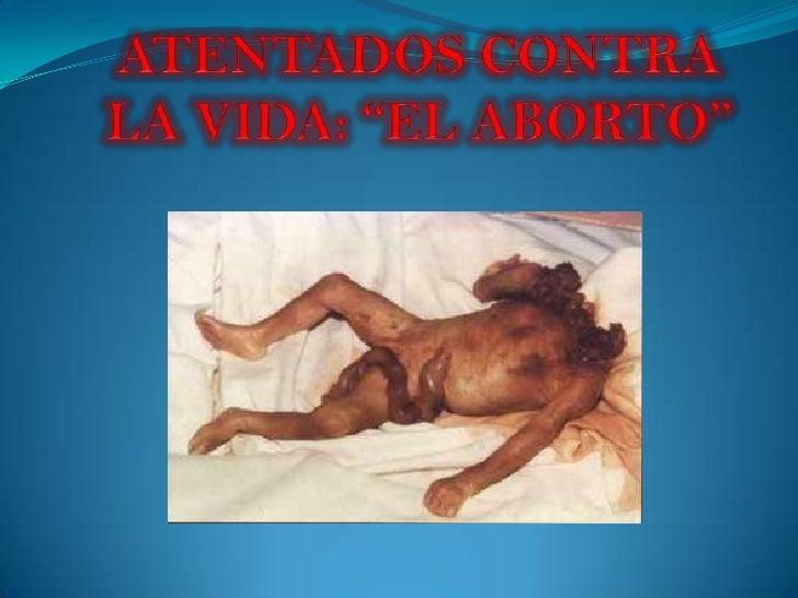 """ATENTADOS CONTRA LA VIDA: """"EL ABORTO"""" <br />"""