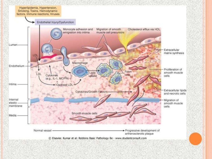 pathogenic etiology of atherosclerosis Download citation | the pathogenesis of | atherosclerosis and its complications, such as myocardial infarction, stroke, and peripheral vascular disease, remain major causes of morbidity and mortality in the western world coronary heart disease alone accounts for over half a million deaths i.