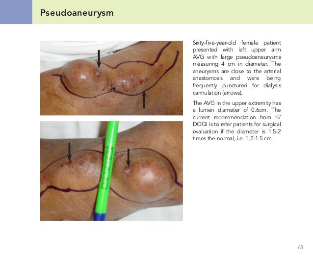 Fistula For Dialysis Pictures