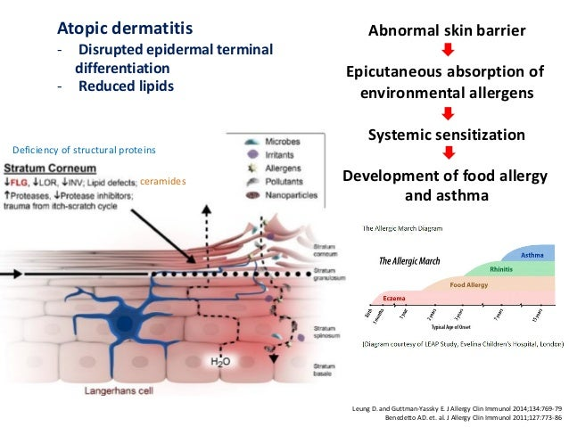 eczema asthma and resilient skin barrier Eczema: what your dermatologist won't tell you aoife in which individuals who are afflicted with eczema may also have asthma and to help with dryness and keep your skin barrier intact, but perhaps less as your skin barrier might be a little more resilient than it normally.